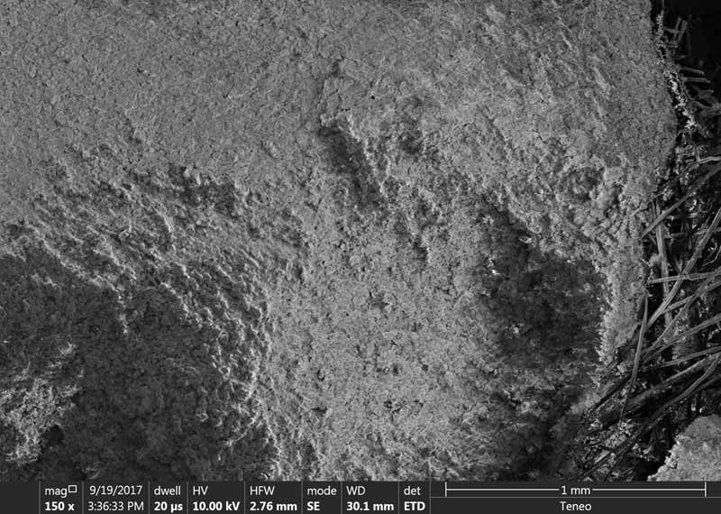 Under microscope, calcium deposits blind the surface of the filter fibres.